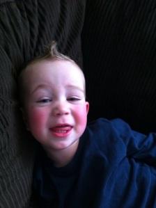 his rosy cheeks